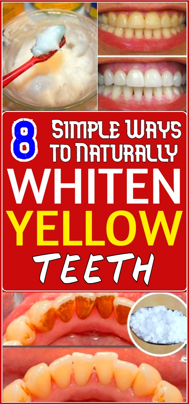 8 Simple Ways to Naturally Whiten Yellow Teeth