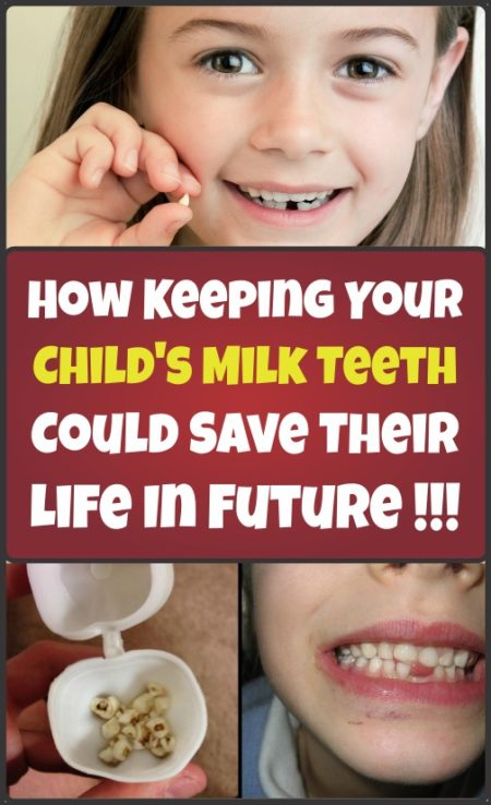 keeping-your-childs-milk-teeth-could-save-their-life-in-future