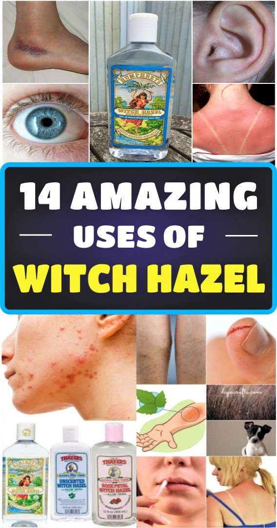 14-amazing-uses-of-witch-hazel