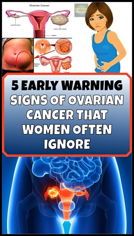 five-early-warning-signs-of-ovarian-cancer-you-should-never-ignore
